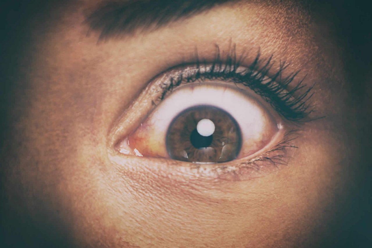 https://strugglingwithaddiction.com/wp-content/uploads/2019/10/Illicit-Drugs-Cause-Red-Eyes-1-1280x854.jpg