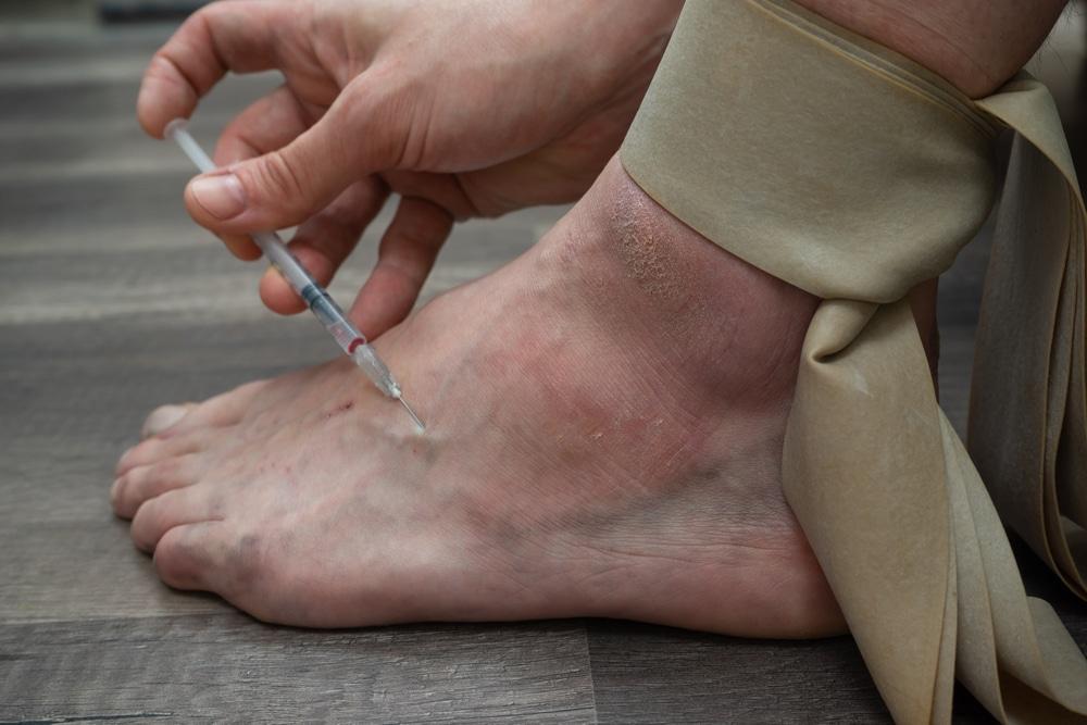 injecting-drugs-skin-lesions-health-problems-addiction-drug-rehabilitation