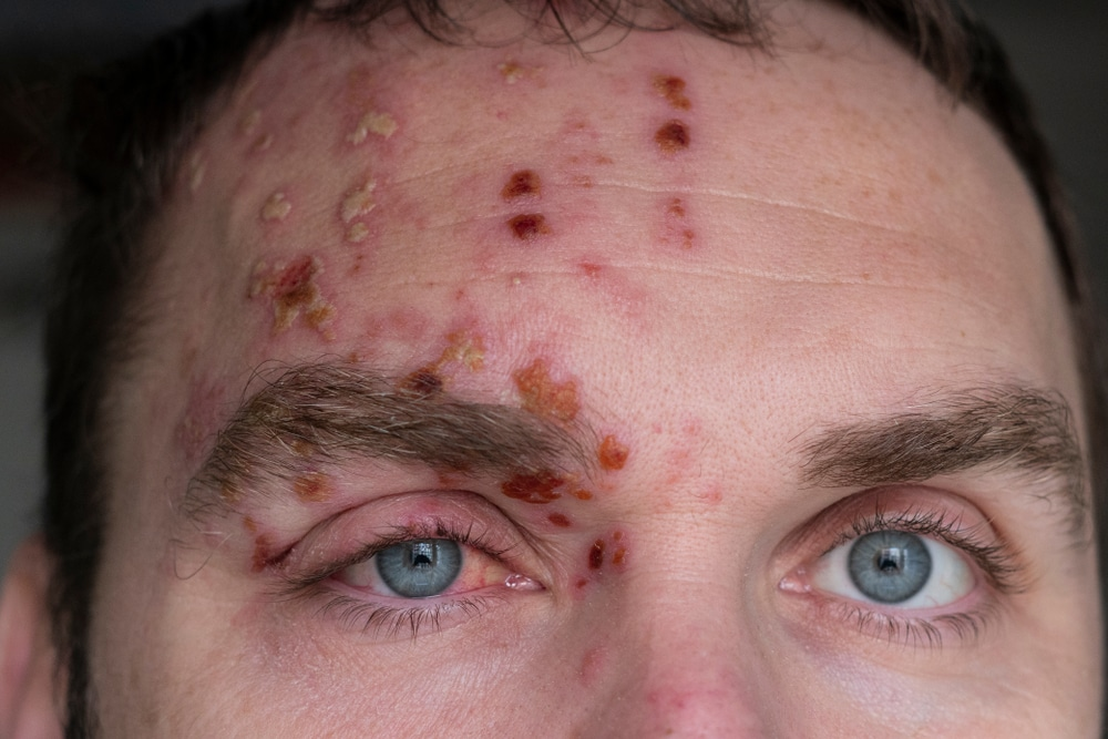 skin-lesions-from-drug-use-addiction-heroin-meth-cocaine-alcohol-cannabis-smoking-needles